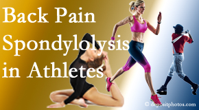 Layden Chiropractic treats athletes of all levels and all ages who have back pain using spinal manipulation, nutrition and specific exercise.