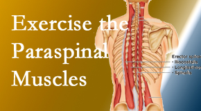 Layden Chiropractic explains the importance of paraspinal muscles and their strength for Plainville back pain relief.