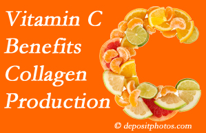 Plainville chiropractic shares tips on nutrition like vitamin C for boosting collagen production that decreases in musculoskeletal conditions.