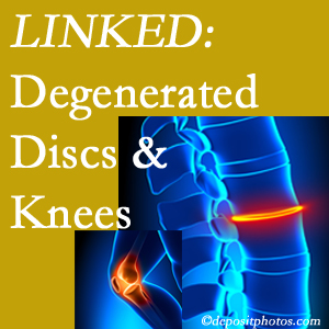Degenerated discs and degenerated knees are not such strange bedfellows. They are seen to be related. Plainville patients with a loss of disc height due to disc degeneration often also have knee pain related to degeneration.